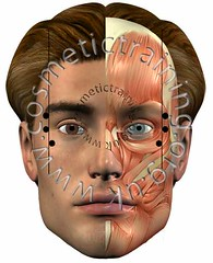 crows_feet (www.cosmetictraining.org.uk) Tags: foundation points injection facial toxin botulinum botoxtraining wwwcosmetictrainingorguk cosmetictrainingcourses