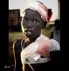 This Boy's Tale. (Tomasito.!) Tags: africa light boy portrait people man male art apple photoshop hospital mouth dark painting macintosh nose sadness artwork eyes mac nikon asia child sad darkness arms southsudan teeth philippines poor tubes photojournalism dramatic naturallight ears doctor reality noise drama boyhood bandage vignette journalism gauze msf d90 doctorswithoutborders nikond90
