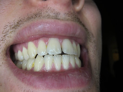IMG_0059.jpg (divide) Tags: macro canon teeth mouths ringflash s90 ringlight