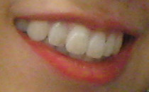 Lips reddened and teeth whitened