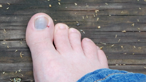 Why Toe-Punching a Soccer Ball is Not a Good Idea...