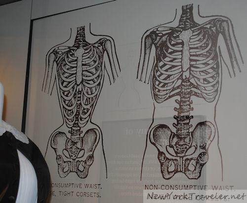 Corset Bones