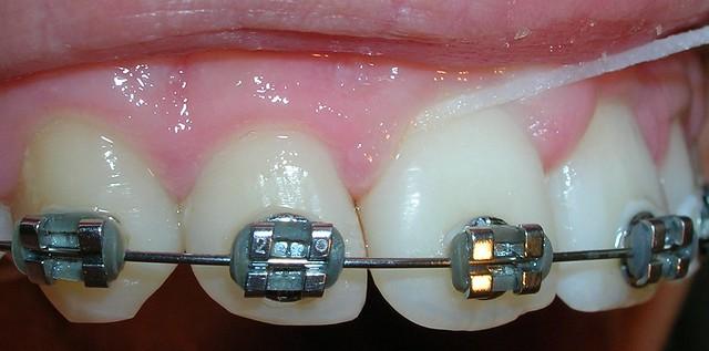 Cinta dental y ortodoncia