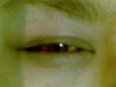 ศัลยกรรมตาสามชั้น
