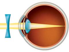 Defectos ópticos