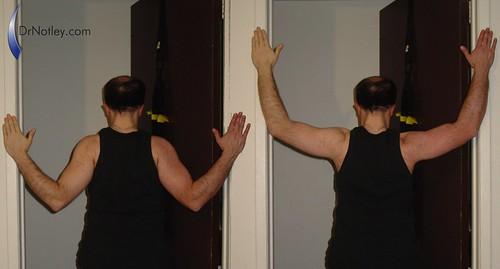 Chiropractor exercise: T's through door exercise