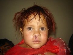 Razia after her surgery at CURE Kabul