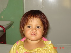 Razia before her surgery at CURE Kabul