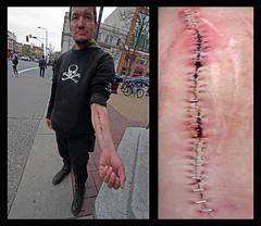 Scotty's Scar (professional recreationalist) Tags: poverty street island bc cut britishcolumbia homeless suicide compassion victoria vancouverisland wrist brucedean professionalrecreationalist wound scar addiction infected empathy slit walkamileinmyshoes