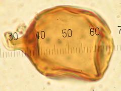 Glomus (Brunailde) Tags: fungi zygomycota chlamydospore nosepta