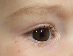 A mi bebé le lloran los ojos