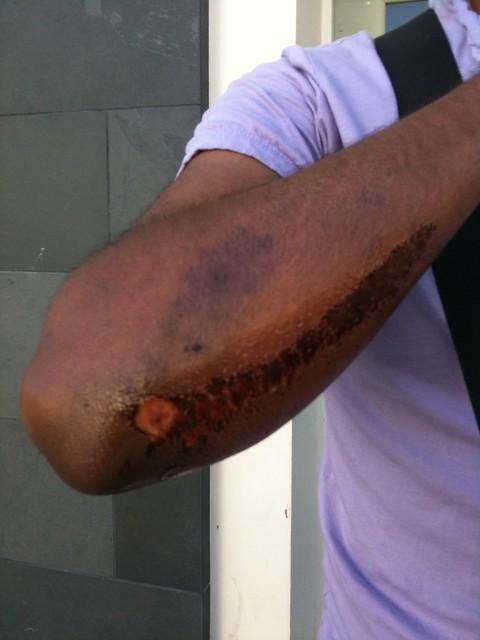 Jonathan's Arm