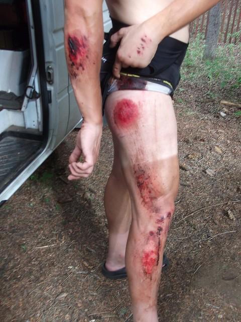 Bailey Hundo road carnage