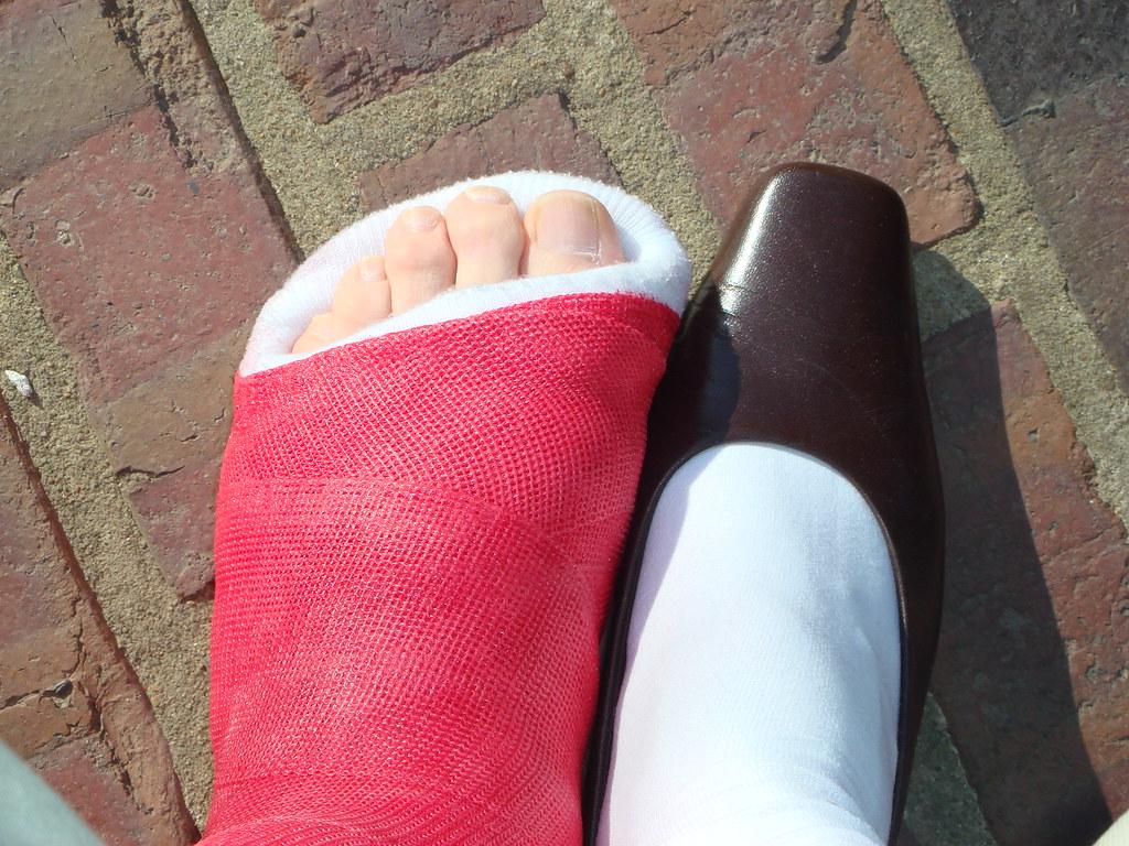 Low heeled chic (sallyhighheels) Tags: cast brokenleg slwc toeplate