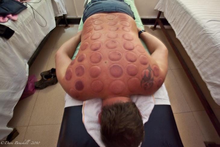 red spots on my feet - Dermatology - MedHelp