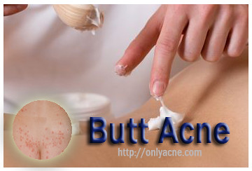 butt acne,butt acne treatment,acne treatment