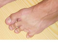 bare foot (gunter1415) Tags: feet toes amputee zehen toeamputee ninetoed