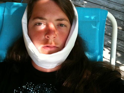 wisdom teeth aftermath