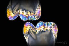 teethelastics (Fernando Rey) Tags: tooth photo foto teeth dental creatividad dientes creacion elastics photoelastics