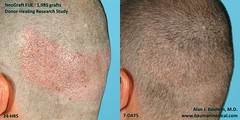 5260268465 87e9c48da7 m FUE   Follicular Unit Extraction with NeoGraft