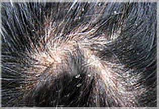 頭皮屑原因,頭皮屑洗髮精,去頭皮屑,治療頭皮屑,去頭皮屑洗髮精,嬰兒頭皮屑,抗頭皮屑洗髮精,頭皮屑變多,頭皮屑中醫,冬天頭皮屑,頭皮屑洗髮精,頭皮屑很多,頭皮屑超多,頭皮屑治療,小孩頭皮屑,換季頭皮屑,頭皮按摩,精油按摩 頭皮,頭皮按摩梳,男生頭皮按摩,頭皮按摩精油,頭皮按摩方法,頭皮按摩美容院,頭皮按摩 spa,頭皮按摩梳子,台中頭皮按摩,彰化頭皮按摩,頭皮按摩器頭皮按摩油, 頭皮舒壓,頭皮精油舒壓,馨舞極spa,馨舞極,血海穴,足三里穴,少衝穴,經絡按摩,精油按摩步驟