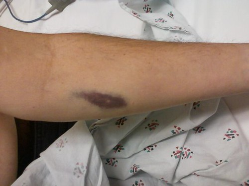 Blood draw bruise