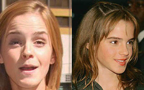 Belezas paradoxais - Emma Watson
