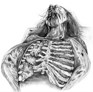 Zombie Dissection: Chest