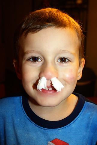 Tissue-in-Nose
