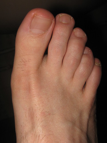 Hairy Feet Pictures, Images & Photos | Photobucket