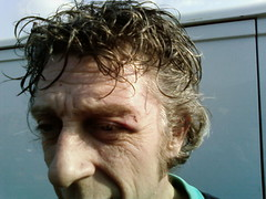 talon black eye1