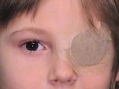 """La oclusión del ojo sano mediante un parche es el mejor tratamiento para la ambliopía (llamada también """"ojo vago"""")"""