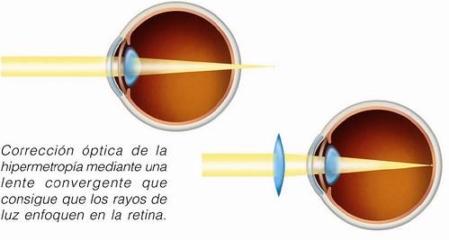 Corrección óptica de la hipermetropía mediante una lente convergente que consigue que los rayos de luz enfoquen en la retina