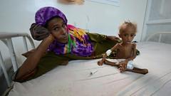 أكثر من 24 مليون يمني يواجهون التشرد والجوع (e279c75b5733ea5526b1358d3e766996) Tags: أكثر من 24 مليون يمني يواجهون التشرد والجوع