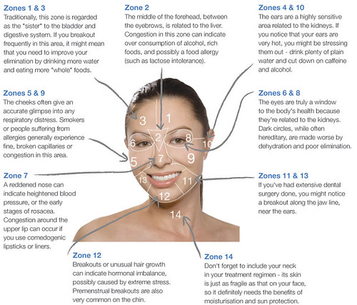 Best medicine for acne and acne marks