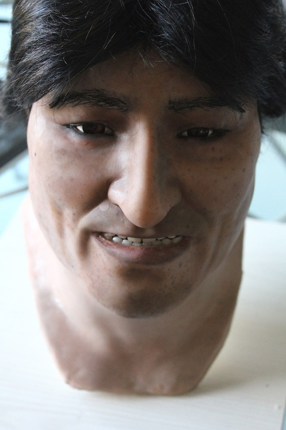 head of Evo Morales in Silicone hair implants