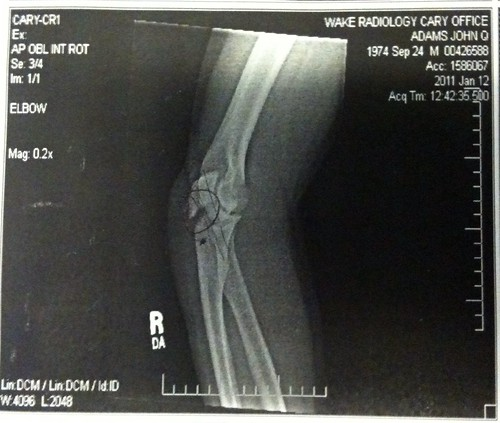 My broken elbow  : (