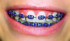 Braces ! (NeverGrowingUp) Tags: blue smile face mouth braces teeth 365 brace brackets orthodontics