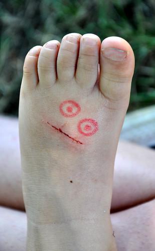 scar foot face