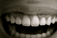 192 (mylacuna) Tags: blackandwhite bw monochrome mouth teeth gums lips 365 365project kellywebster mylacuna rachaelhyde