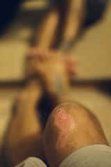 29/365 (obo-bobolina) Tags: portrait hannah injury sp 365 knee scar selfie 365days