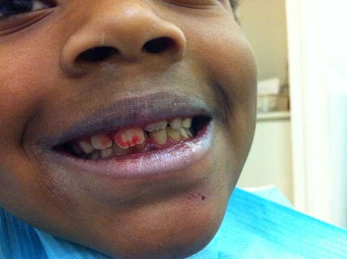 Oops  - Dislocated Tooth