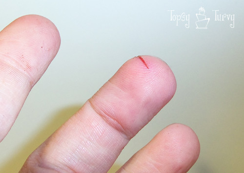 rotary cutter injury