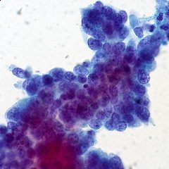 Adenocarcinoma in Situ of the Cervix (euthman) Tags: specimen pathology ais photomicrograph adenocarcinoma cervical cervix papsmear thinprep adenocarcinomainsitu
