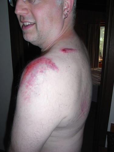 Pauls Bruising
