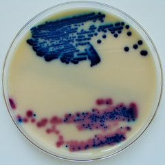 Urine Culture - Oxoid Brilliance U.T.I. Agar (Nathan Reading) Tags: culture urine spectra bd bacteria cps microbiology hygiene resistance infection proteus ecoli agar antibiotics kpc pathogen uti agaragar chromogenic cystitis remel pathogenic escherichiacoli difco culturemedia urinarytractinfection klebsiella biomerieux ndm1 chromogen oxoid polyuria dysuria enterobacteriacae brillianceutiagar
