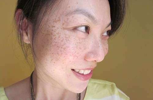 freckles3