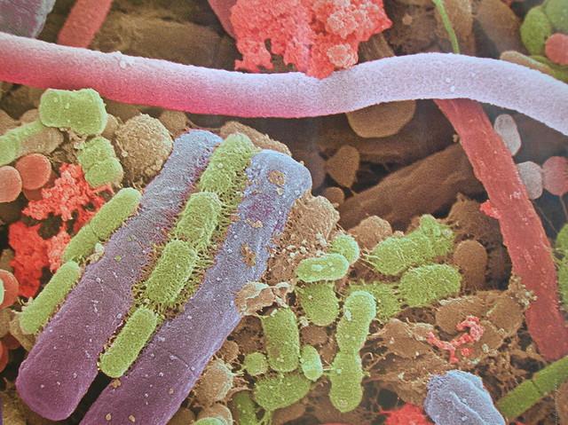 Bacterias de la placa dental