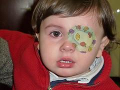 Oftalmología infantil