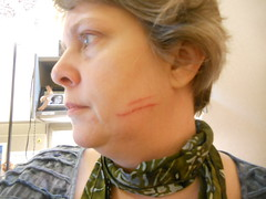 Cat scratch fever, day 5--Daily Image 2011--May 5 (Rochelle, just rochelle) Tags: woman face cat profile injury scratch 365days dailyimage2011 patronssaythedarndestthings someoneforgothersafeword
